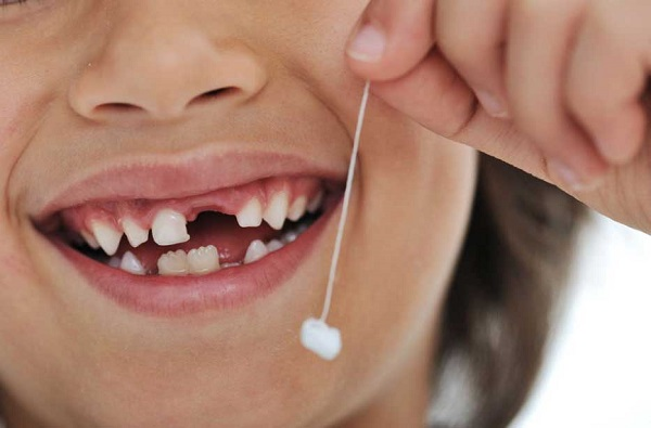 Los dientes de leche sí se tratan